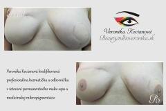 Areola tetovanie permanentného make-upu medicínska mikropigmentácia Veronika Kocianová