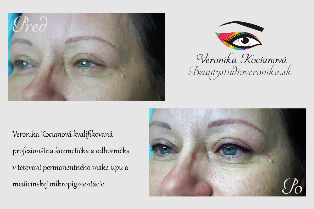 Horné očné linky sa tetujú vždy podľa možností pokožky viečok