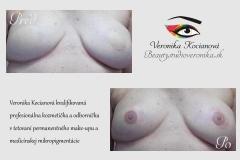 Rakovina operácia jazvy tetovanie areola Veronika Kocianová