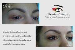 Tetovanie očných liniek