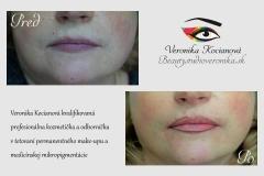 tetovanie permanentného make-upu kontúry pier VERONIKA KOCIANOVÁ