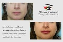 Tetovanie pier permanentný make-up na pery